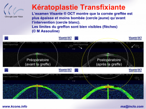 keratoplastie tranfixante